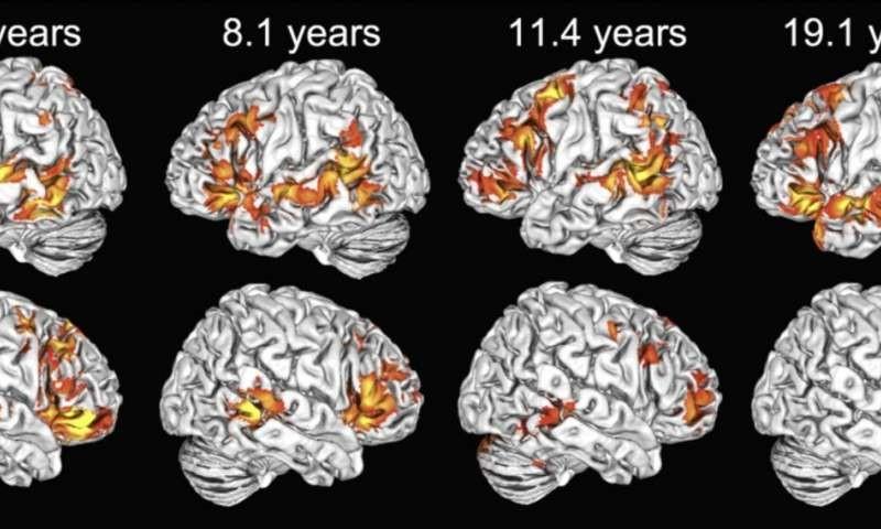 Children use both brain hemispheres to understand language, unlike adults
