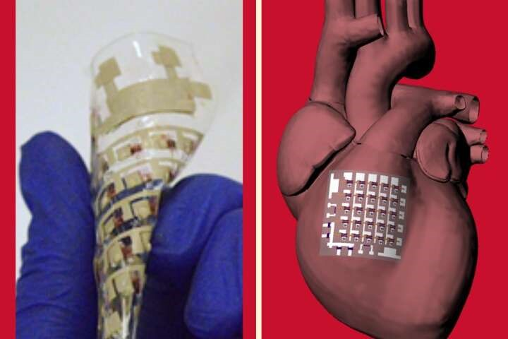 Implantable device can monitor and treat heart disease